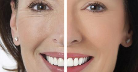 Ревитоника – омоложение лица без операции