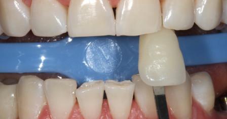 Преимущества отбеливания клинического зубов
