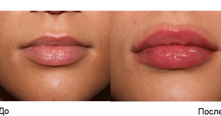 Увеличение губ, особенности и стоимость процедуры
