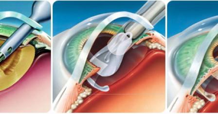 Способы удаления катаракты