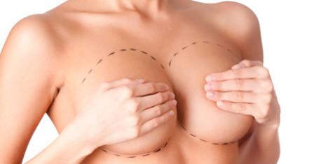 Увеличение груди – особенности операции