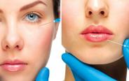 Пластика лица с филлерами – отличный способ вернуть молодость и привлекательность