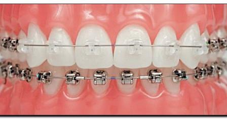 Брекет-система Damon – всегда идеальные зубы