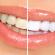 Что такое профессиональная чистка зубов?